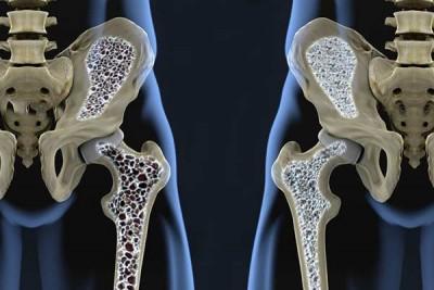 destaque-osteoporose